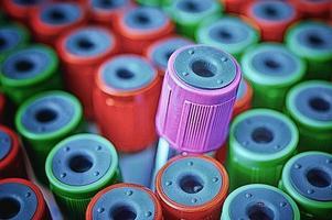 Close up tube à essai médical avec des échantillons de sang photo