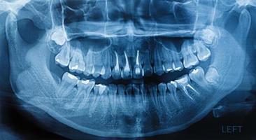film radiographie scan humain photo
