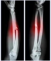 tige de fracture comminutive de l'os ulnaire photo