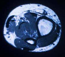 imagerie par résonance magnétique IRM photo
