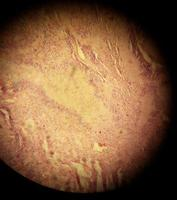 schwanomma - tumeur cérébrale