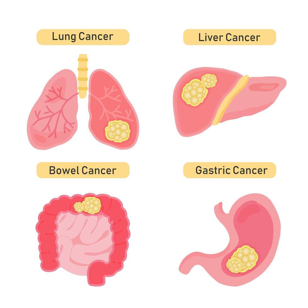 types de conception de cancer des organes vecteur