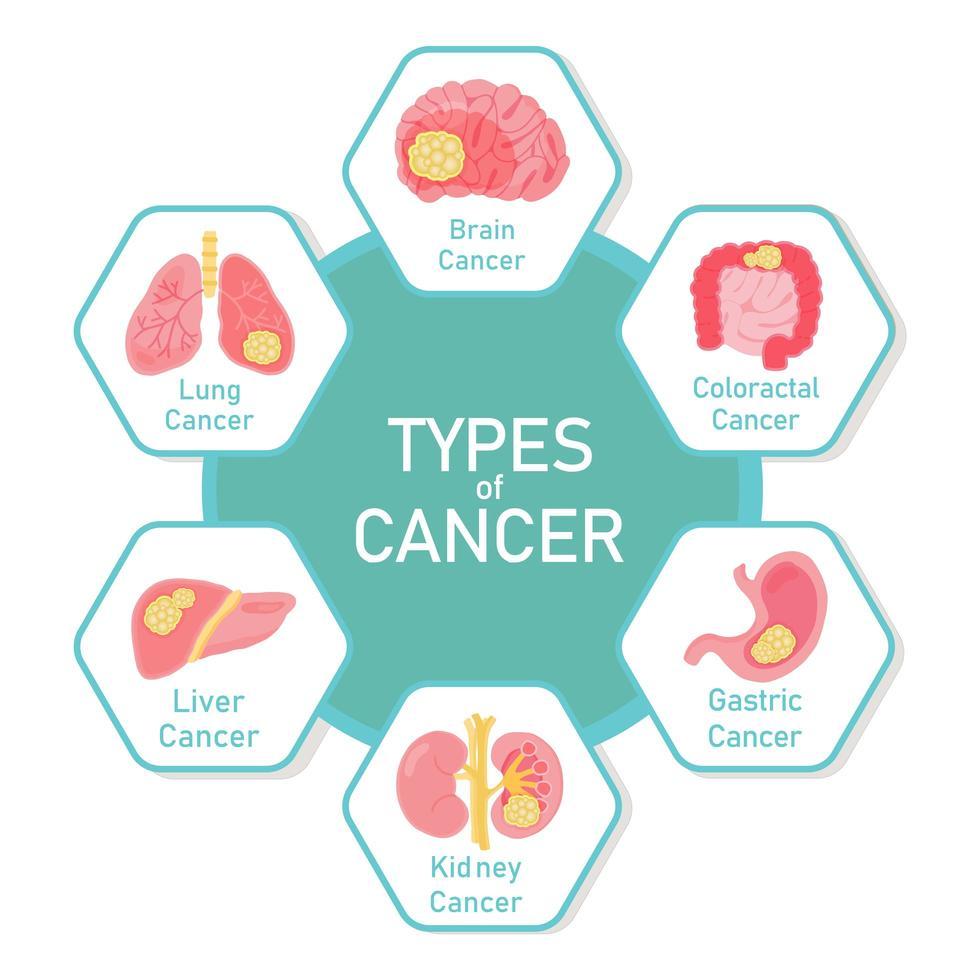 types de conception de diagramme de cancer vecteur