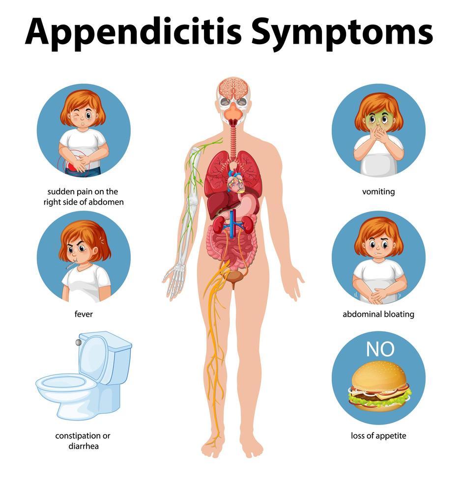 infographie des informations sur les symptômes de l'appendicite vecteur