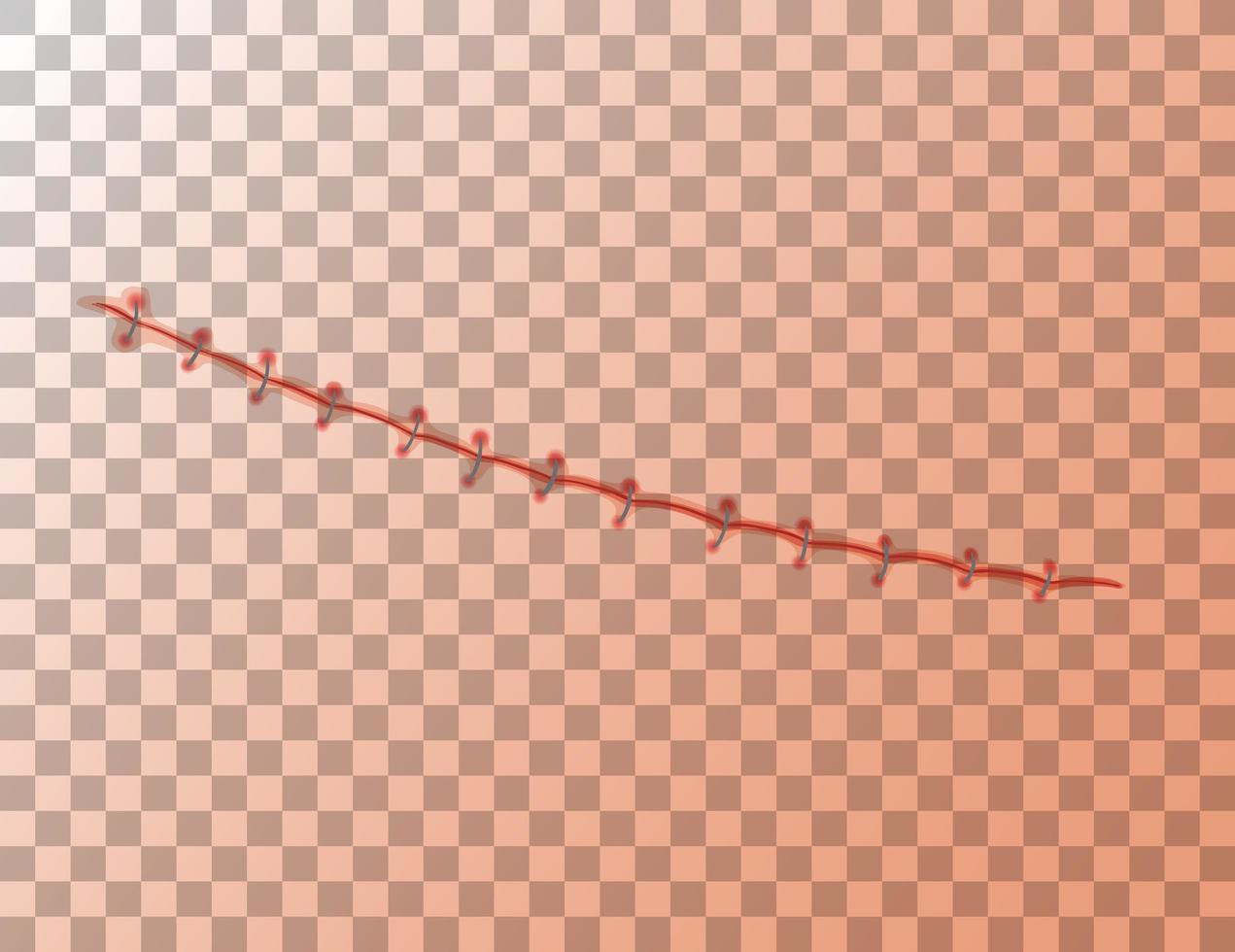 suture des plaies sur fond transparent vecteur