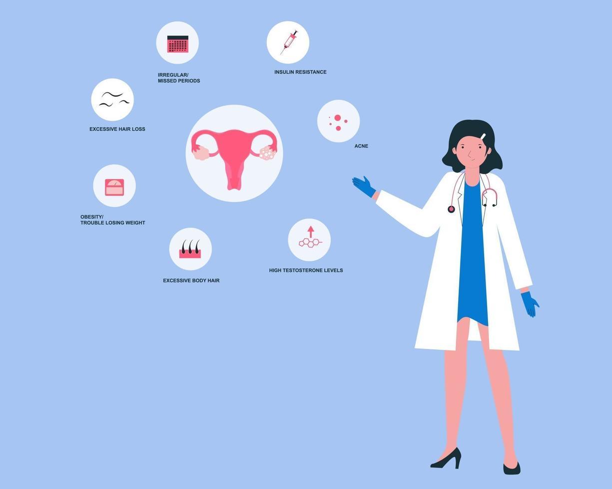 médecin présentant des symptômes du syndrome des ovaires polykystiques vecteur