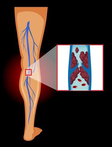 Image médicale des varices vecteur