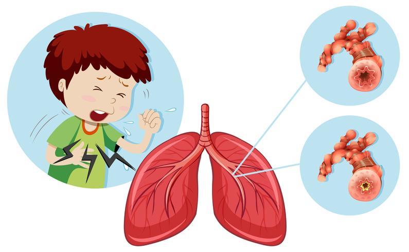 Un homme ayant une maladie pulmonaire obstructive chronique vecteur