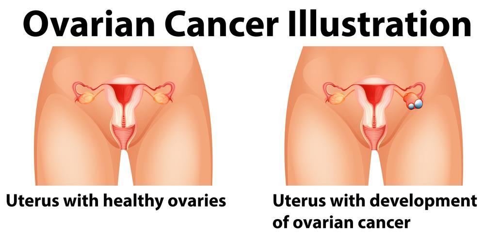 Diagramme montrant le cancer de l'ovaire chez l'homme vecteur