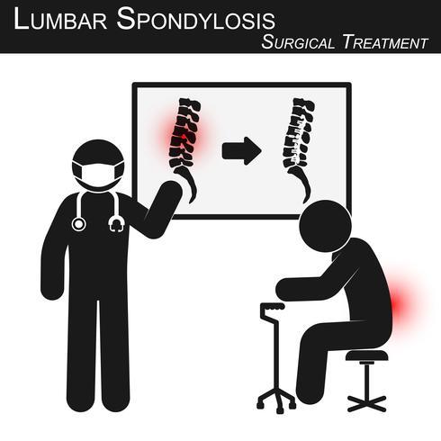 Un médecin explique le traitement chirurgical de la spondylose lombaire et montre une imagerie de la colonne vertébrale (avant et après l'opération par fixation interne avec plaque et vis) (vecteur stickman) vecteur