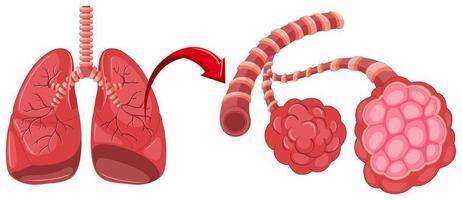 diagramme de pneumonie avec zoom dans les poumons vecteur