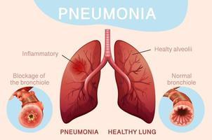affiche pour la pneumonie avec les poumons humains vecteur