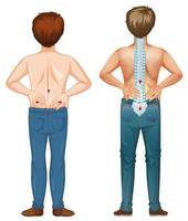hommes montrant une tache de douleur dans le dos