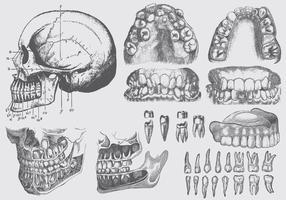 Illustrations de la maladie dentaire vecteur