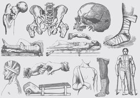 Illustrations de traitement de fracture grise