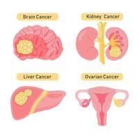 types de conception de cancer des organes