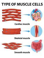 tableau des types de cellules musculaires