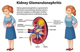 infographie médicale de la glomérulosclérose rénale vecteur