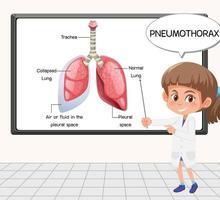 Un jeune scientifique explique le pneumothorax devant un tableau en laboratoire