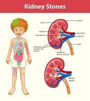 infographie de style dessin animé symptômes de calculs rénaux