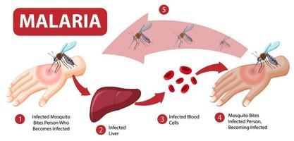 infographie des informations sur les symptômes du paludisme