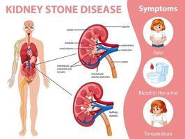 infographie de la maladie et des symptômes des calculs rénaux vecteur