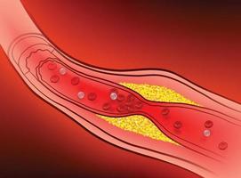 artères avec de la graisse obstruée qui provoque des caillots sanguins.