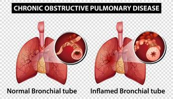 diagramme montrant la maladie pulmonaire obstructive chronique vecteur