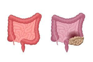 anatomie des intestins humains forte saine et malsaine avec comparaison du cancer du côlon. cavité abdominale tumeur digestive et excrétrice des organes internes en oncologie. illustration de vecteur de problème de digestion eps