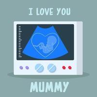 échographie d'un bébé qui exprime l'amour qu'il ressent pour sa mère vecteur