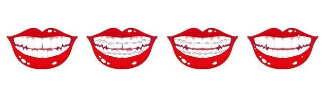 Ensemble de dessin animé de vecteur de bouches souriantes avec étapes d'alignement des dents à l'aide d'accolades métalliques orthodontiques sur fond blanc