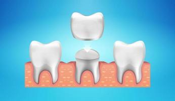 restauration de couronne dentaire dans un style réaliste vecteur
