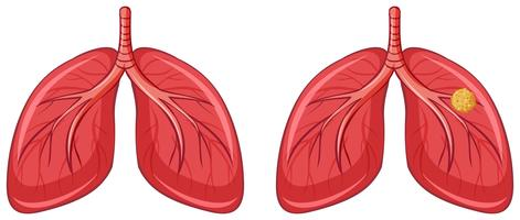 Poumons humains et cancer vecteur