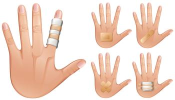 Des doigts et des mains enveloppés de bandages