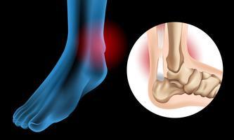 Diagramme montrant une déchirure chronique du tendon d'Achille vecteur