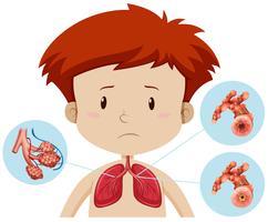 Un garçon avec une bronchite vecteur