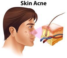 Un jeune homme souffrant d'acné vecteur