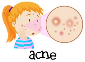 Une jeune femme ayant de l'acné vecteur