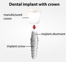Implant dentaire avec couronne vecteur