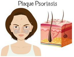 Anatomie humaine du psoriasis en plaques vecteur