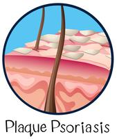 Psoriasis en plaques d'anatomie humaine vecteur