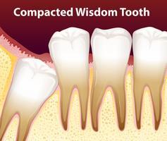 Une dent de sagesse compactée vecteur
