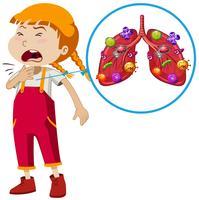 Un vecteur d'infection de poumon de fille