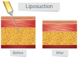 Traitement médical de liposuccion et comparaison vecteur