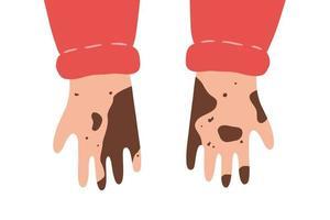 mains sales et non lavées. illustration vectorielle isolée dans un style plat vecteur