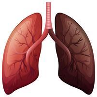 Diagramme du cancer du poumon à grande échelle vecteur