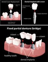 Procédures dentaires sur fond noir vecteur