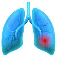 Maladie pulmonaire sur fond blanc