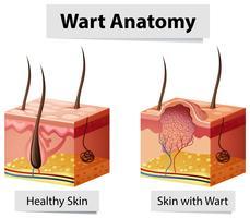 Verrue humaine illustration de l'anatomie de la peau vecteur