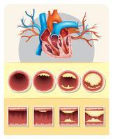 Diagramme montrant la graisse dans le coeur humain